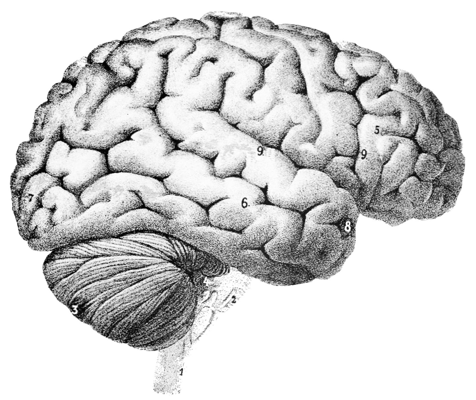 A man without 90 brains has put scientists into a stupor
