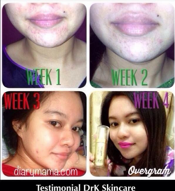 Testimonial DrK Skincare Product , DrK Skincare Product