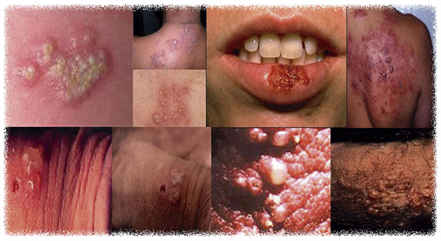 STD Facts - Genital Herpes - cdc.gov