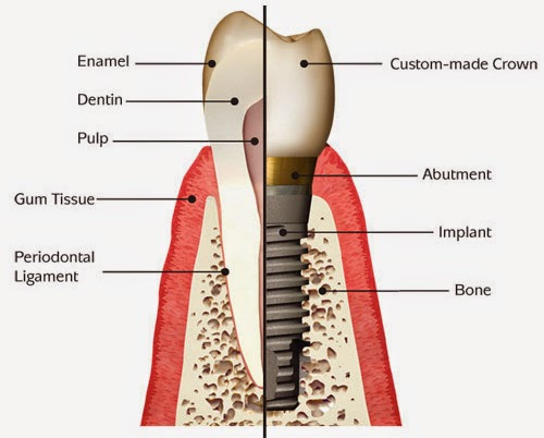 www.bestdentistbangalore.com/dental-implants/