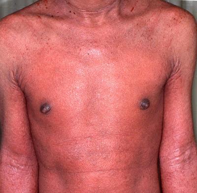 steroid resistant eczema
