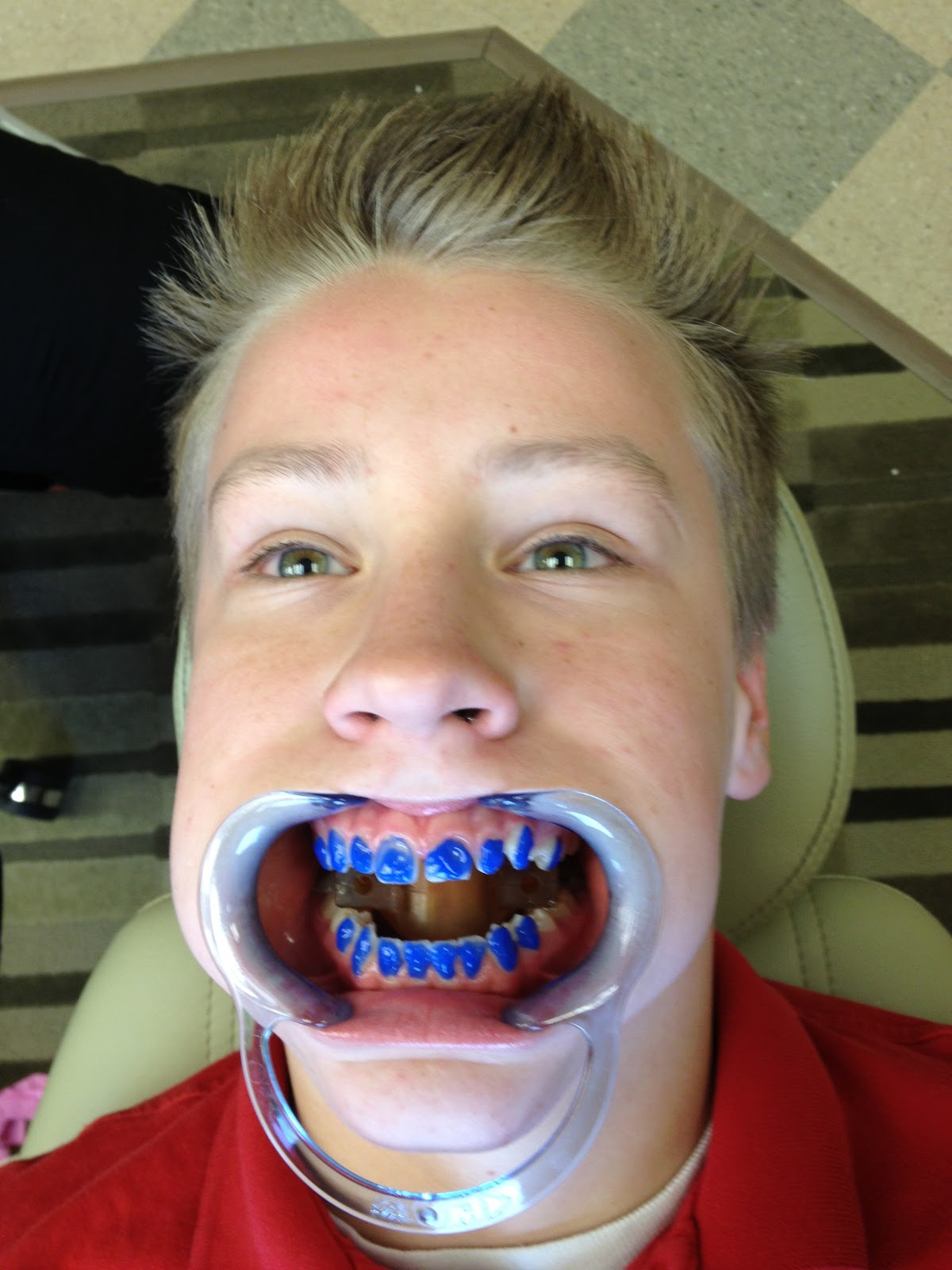 Funny Quotes About Braces. QuotesGram