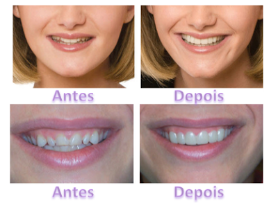 Captura+de+Tela+2013-03-11+a%25CC%2580s+13.48.45 - SNAP-ON SMILE... O SORRISO DE HOLLYWOOD!