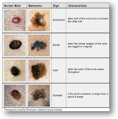 Melanomas ... Have you checked lately?