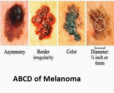 malignant melenoma essay Free engineering essays home and j zouridakis, 'malignant melanoma detection by bag-of-features classification,' in if this essay isn't quite what you.