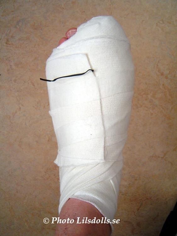 smärta efter hallux valgus operation