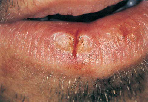 Lip Biopsy: Overview, Indications, Contraindications