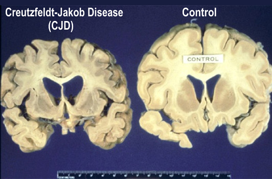 The Brain In Creutzfeldt-Jakob Disease, CJD