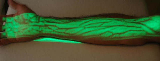 Awesome Device Shows Where Patient's Veins Are Located
