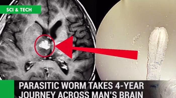 Cacing Pita Langka Ditemukan di Otak Pria Ini