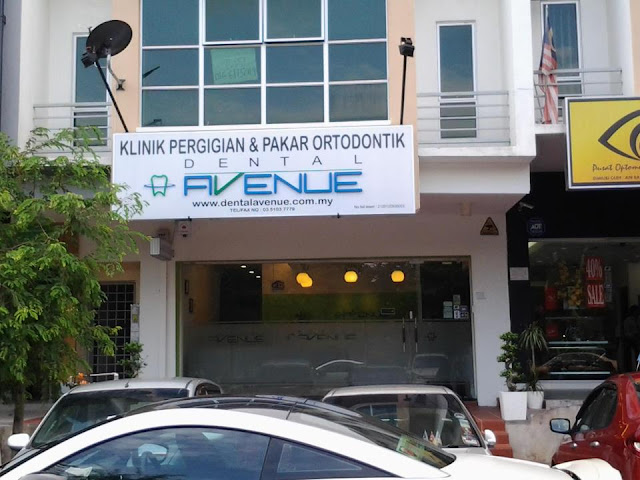 Diskaun Rawatan Invisalign RM2000
