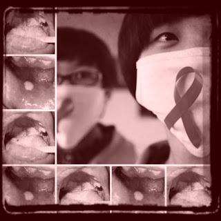 Manifestaciones orales del VIH