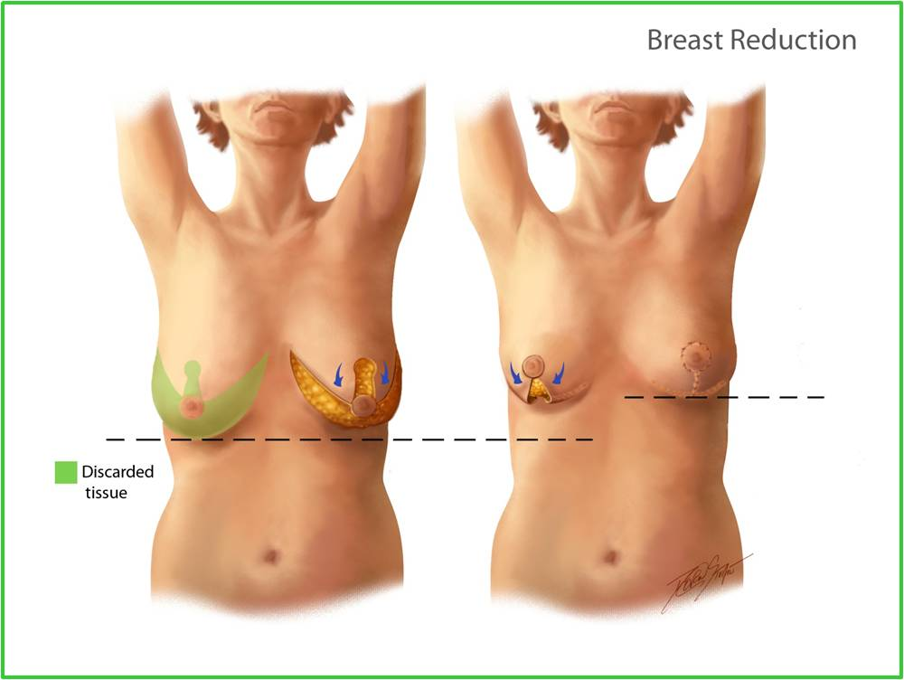 Breast plastic surgery sample pictures