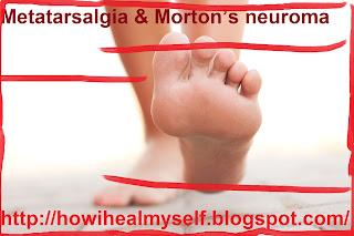 Metatarsalgia & Morton's neuroma