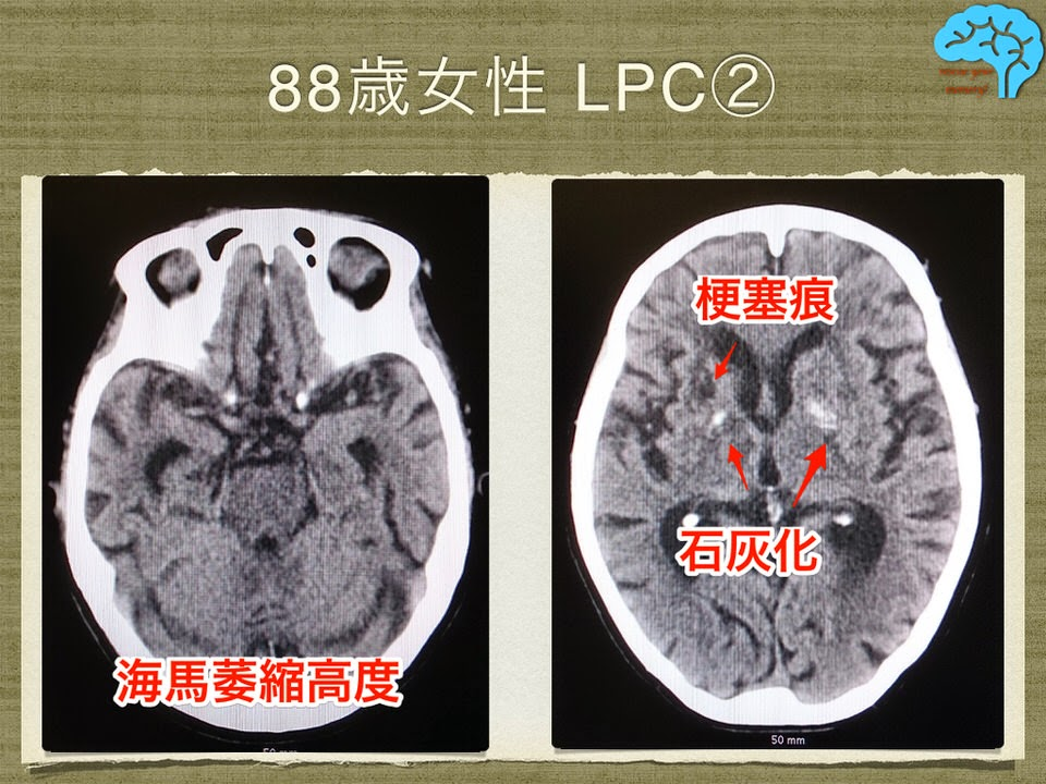 88歳女性LPC。高度な海馬萎縮に基底核石灰化など。