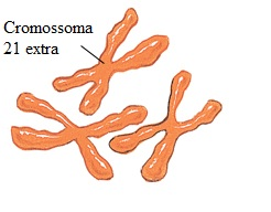 Gene da síndrome de Down foi 'silenciado'