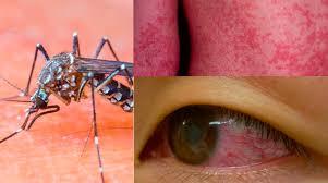Waspadai Virus Zika yang Mulai Menjangkiti Indonesia