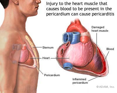 women heart attack pain. of mild heart attack is