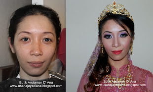 ZILA_Before &amp; After