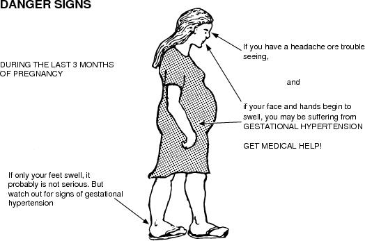 Symptoms of pregnancy induced hypertension