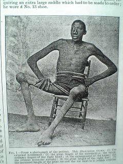 Ginisovi rekordi - Čudo nevidjeno - Page 4 Najvisi-ljudi-na-svetu