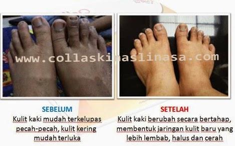 collaskin untuk kulit kaki