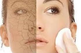 كيف تتخلصين من جفاف بشرتك في رمضان