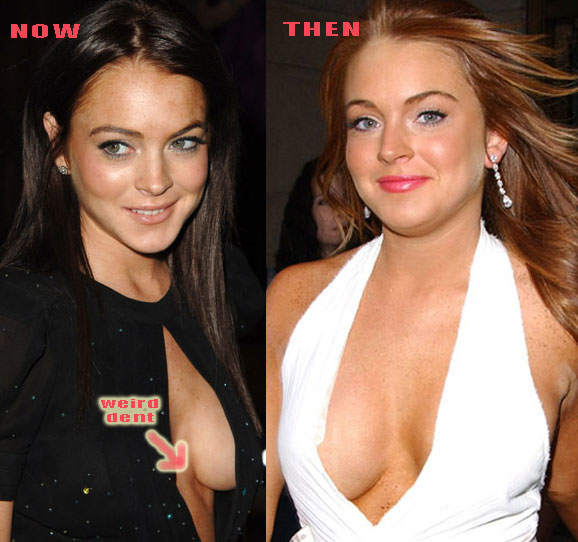 According to the Awfulplasticsurgerycom The mystery of Lindsay Lohan ...