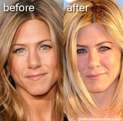 Jennifer Aniston Before and After Cosmetic Surgery