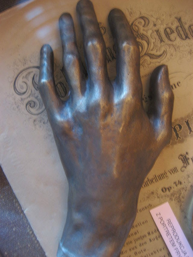 Great Polish Composer - Frederic Chopin - cast of Chopins left hand