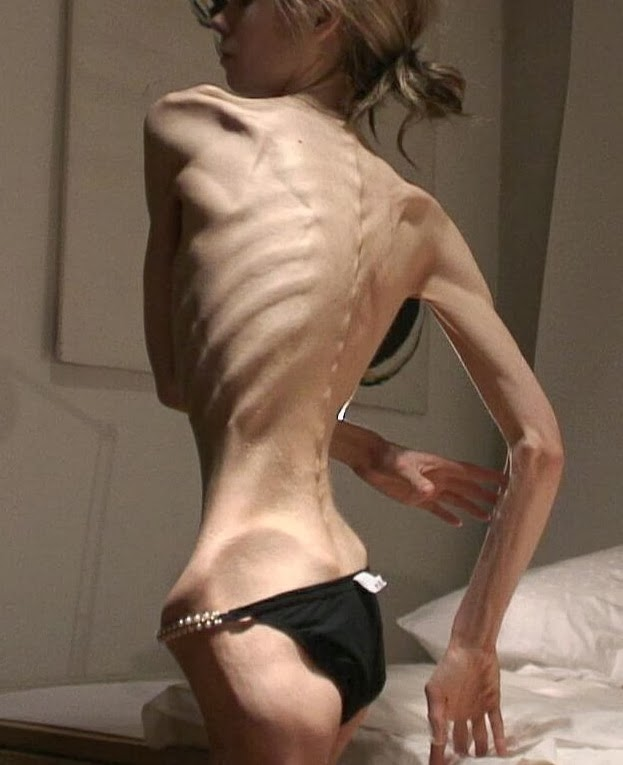 Anorexia Nervosa Is An Eating Disorder Whereby People