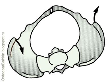 Таз, тазовые кости крестец в левосторонней торсии по левой оси