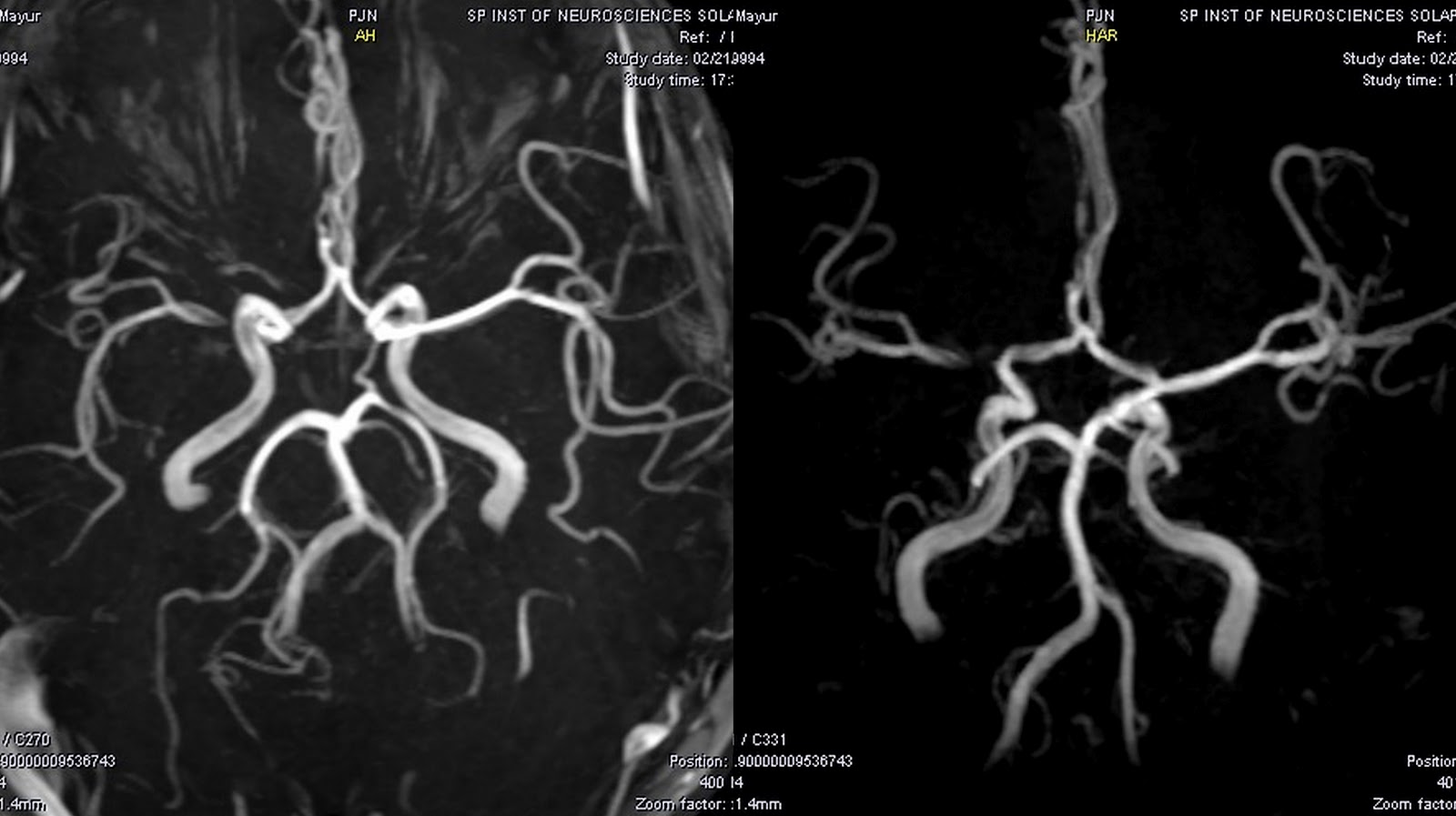 Dr Balaji Anvekar\'s Neuroradiology Cases: 01/02/12 - 01/03/12