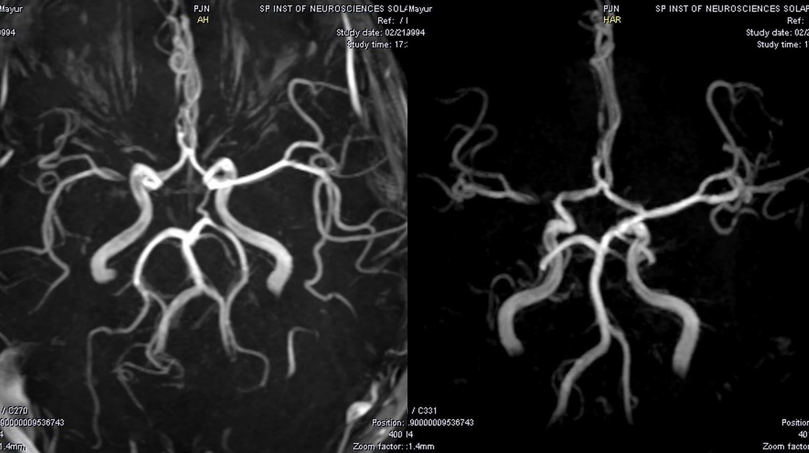 Dr Balaji Anvekar\'s Neuroradiology Cases: 01/02/12 - 01/03/12