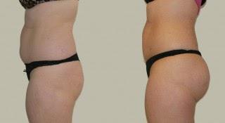 une chirurgie esthétique des fesses permet d'obtenir des fesses fermes