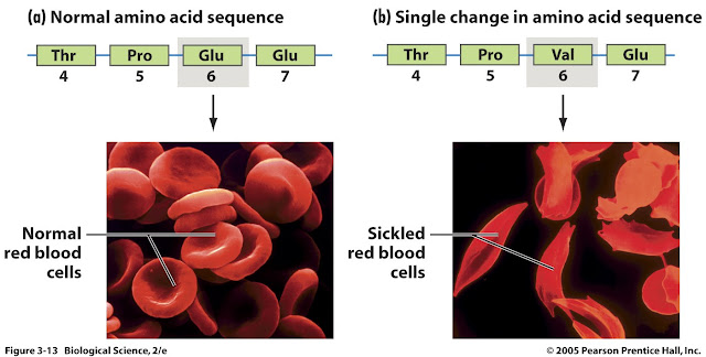 sickle cell anemia research paper