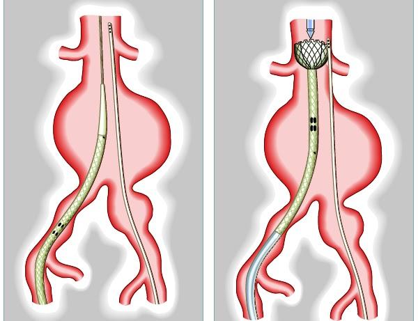 Resultado de imagen para tratamientos endovasculares