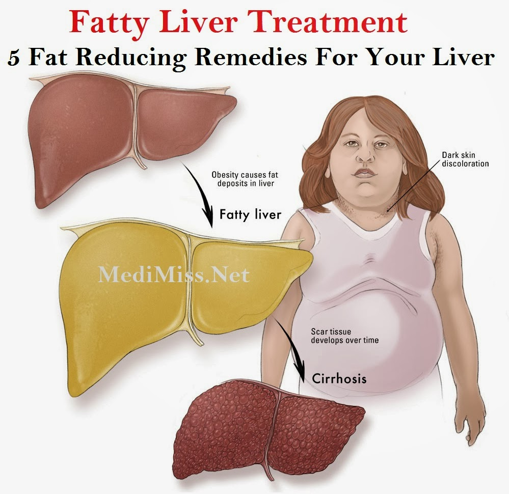 fatty liver you can reverse it pdf