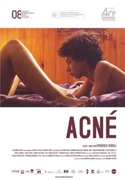 Ver Acné (2008) Online