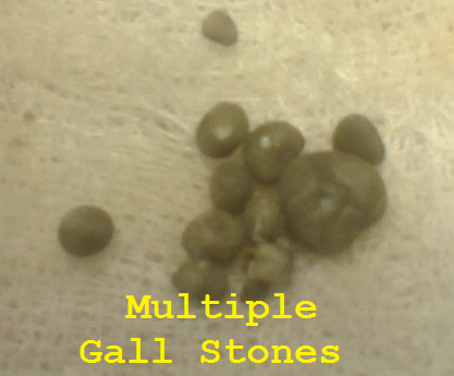 Multiple Gall Bladder Stones
