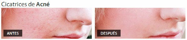 crema para cicatrices de acné