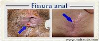 Fotos de fissura anal