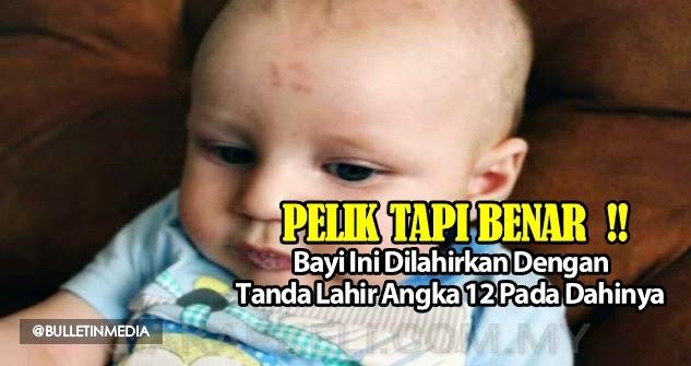 Pelik Tapi Benar, Bayi Ini Dilahirkan Dengan Tanda Lahir Angka 12 Pada Dahinya
