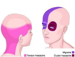 obat penyakit migrain atau sakit kepala sebelah