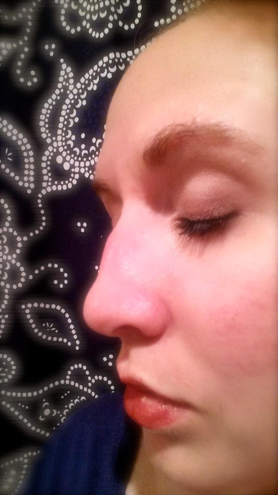 Blister On Lip Treatment Natural