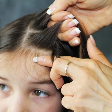 كيفية القضاء على حشرات الشعر