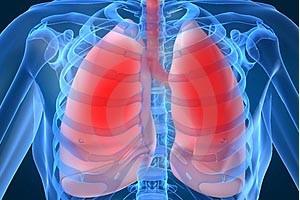 Resultado de imagem para tuberculose pulmonar aids