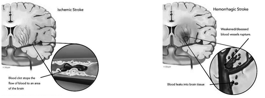 http://neurowiki2013.wikidot.com/individual:alzheimers-disease-and-stroke