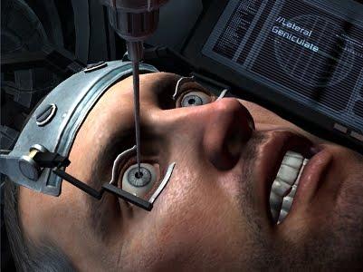 Göz Ameliyatı Yapma Oyunu