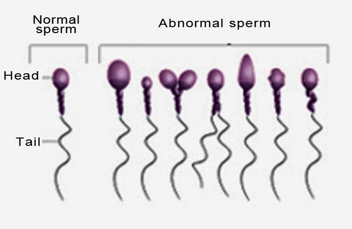 Abnormal amount sperm